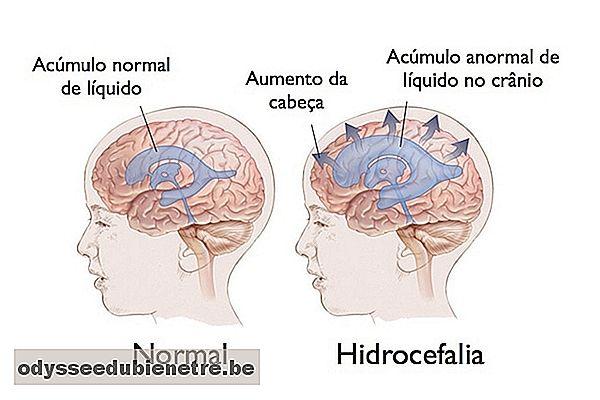 Cirugía de hidrocefalia en ancianos