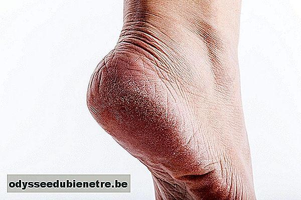 durere de picioare de la genunchi in jos cu tot cu talpi
