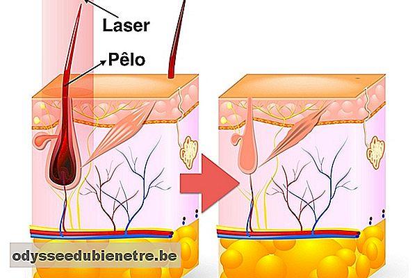 Depilazione Laser All Inguine Come Funziona E Quante Sessioni Di It Odysseedubienetre Be