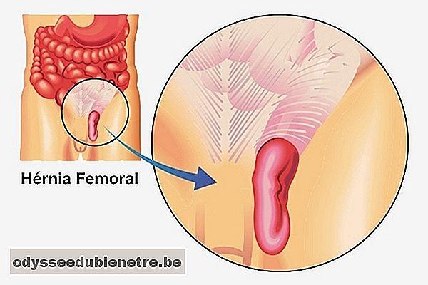 dolor en la ingle cerca de la arteria femoral