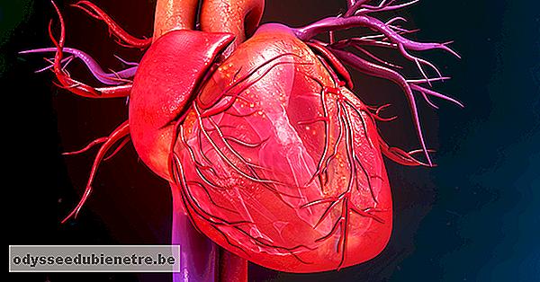 Come identificare e trattare le malattie cardiache ...