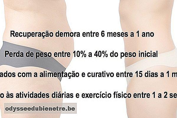 bypass gastricol di perdita di peso del primo meses