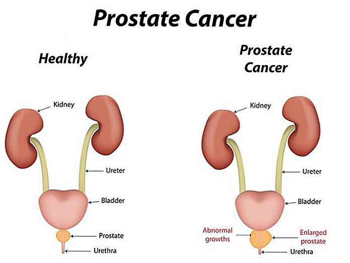 remedios caseros para cancer de prostata