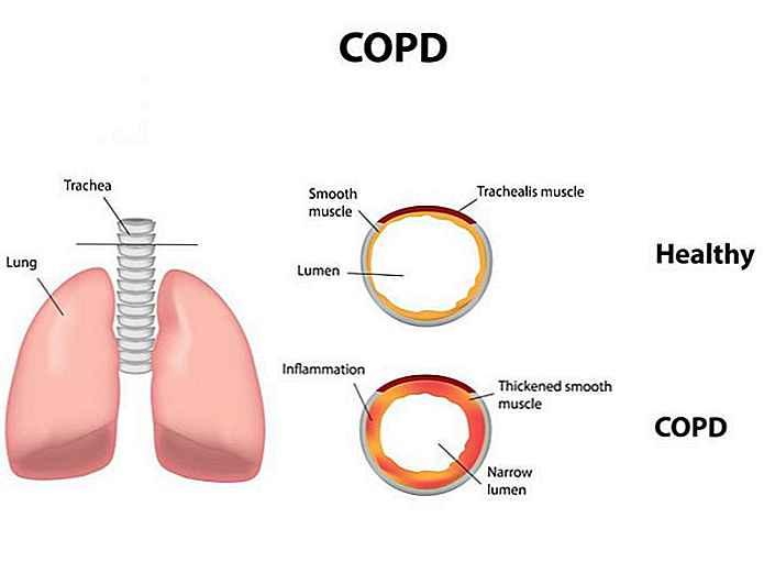 pierderea în greutate în boala pulmonară obstructivă cronică