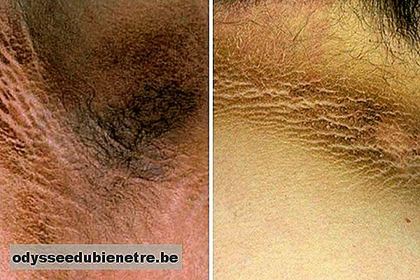 tratamiento de alteraciones de la piel por diabetes