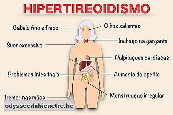 symptomes hypothiroidie